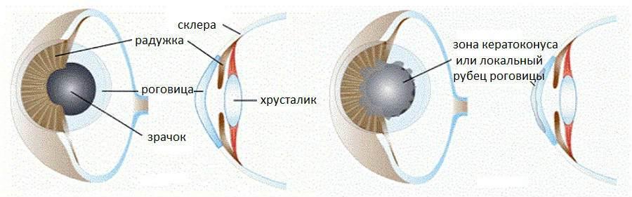Передняя послойная кератопластика