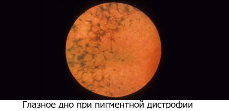 Деструкция пигментного эпителия сетчатки в фовеа