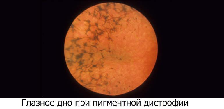 Пигментная дистрофия сетчатки
