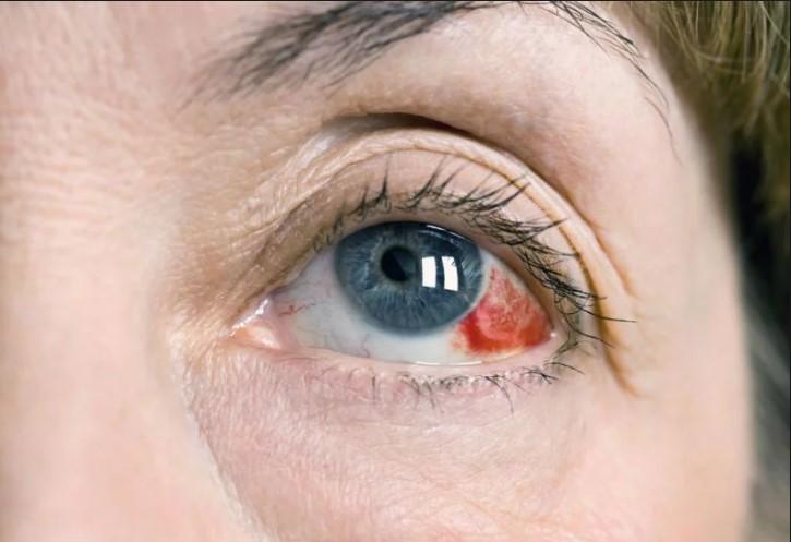 Покраснение глазного белка