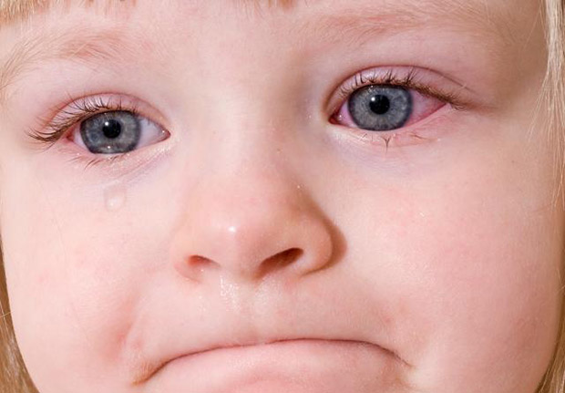 Покраснение глаз и слезотечение