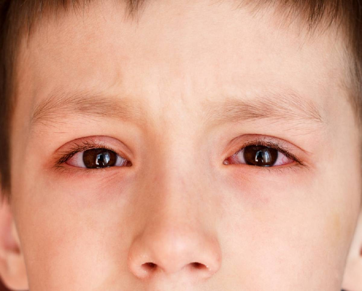 Покраснение глаз у ребенка