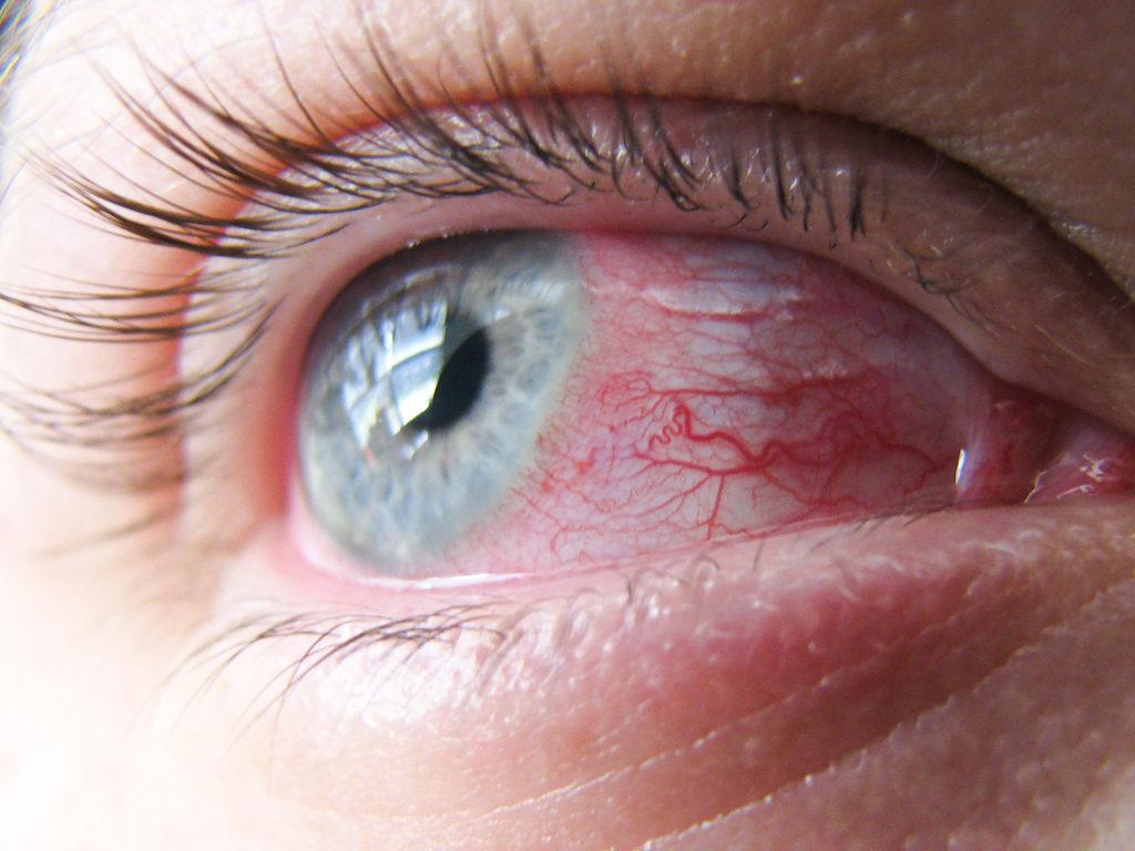 Покраснение слизистой глаза