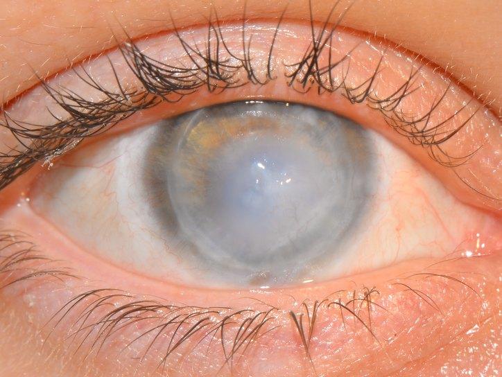 Помутнение роговицы глаза - лечение