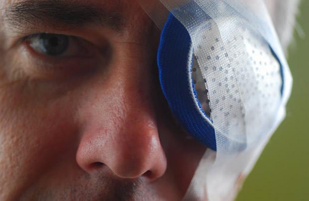 Послеоперационная повязка на глаз