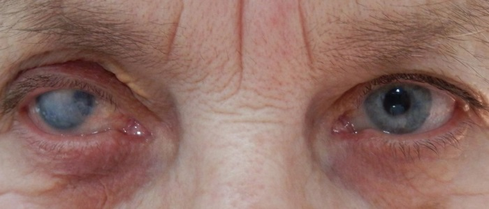 Постановка диагноза начинается со сбора анамнеза, визуального осмотра органов зрения и проверки остроты зрения пациента
