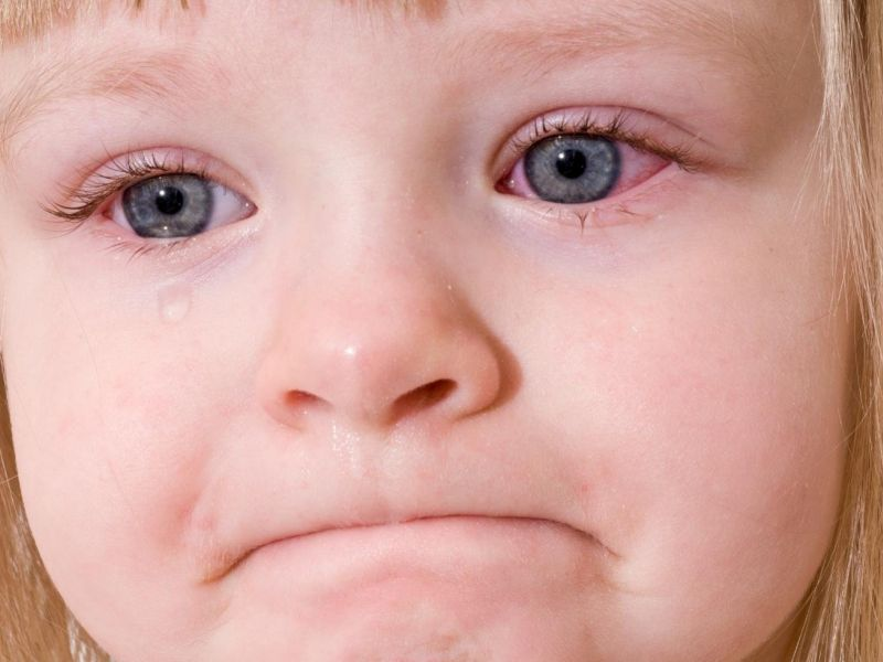 Почему у ребёнка красные глаза