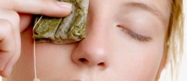 Прикладывание чайных пакетиков поможет снизить зуд