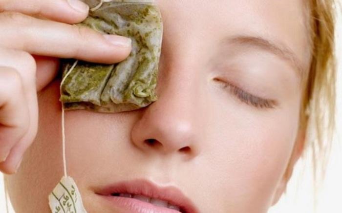 Как лечить глазной ячмень