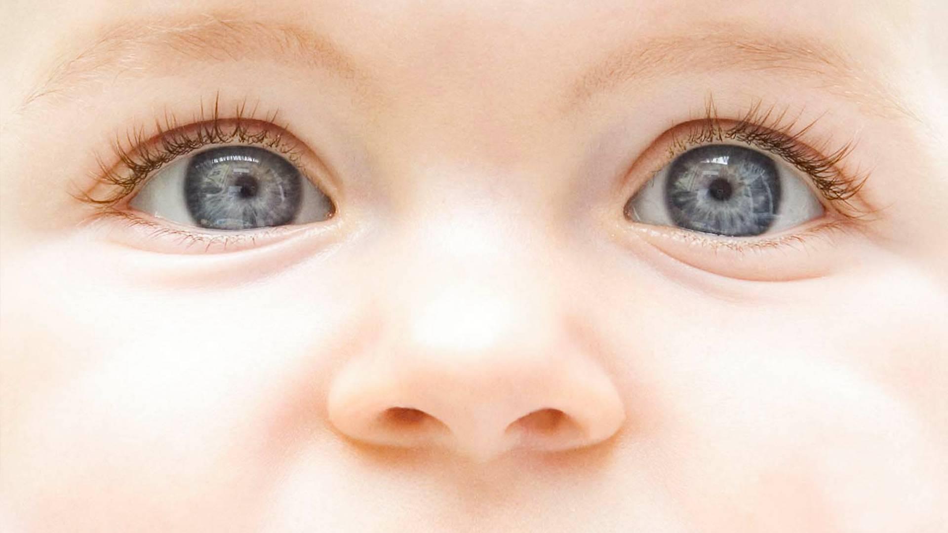 Причины детского конъюнктивита могут быть разными