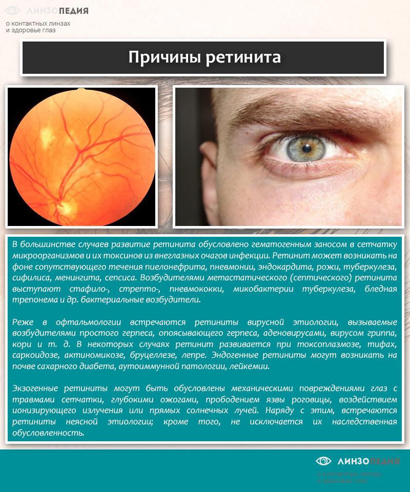 Причины ретинита