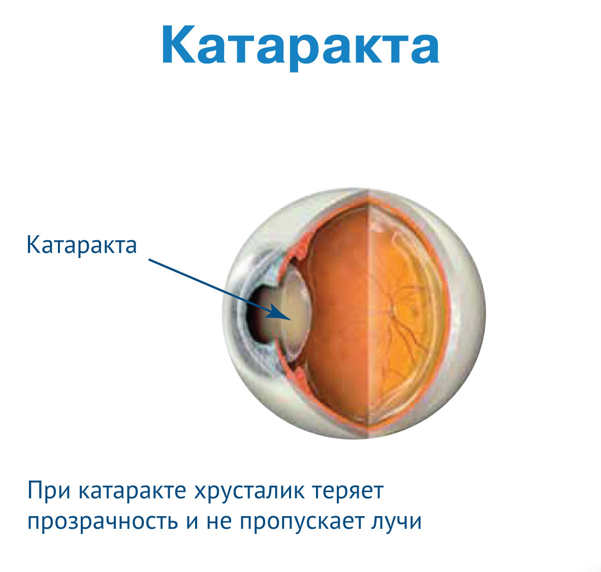 При катаракте хрусталик теряет прозрачность