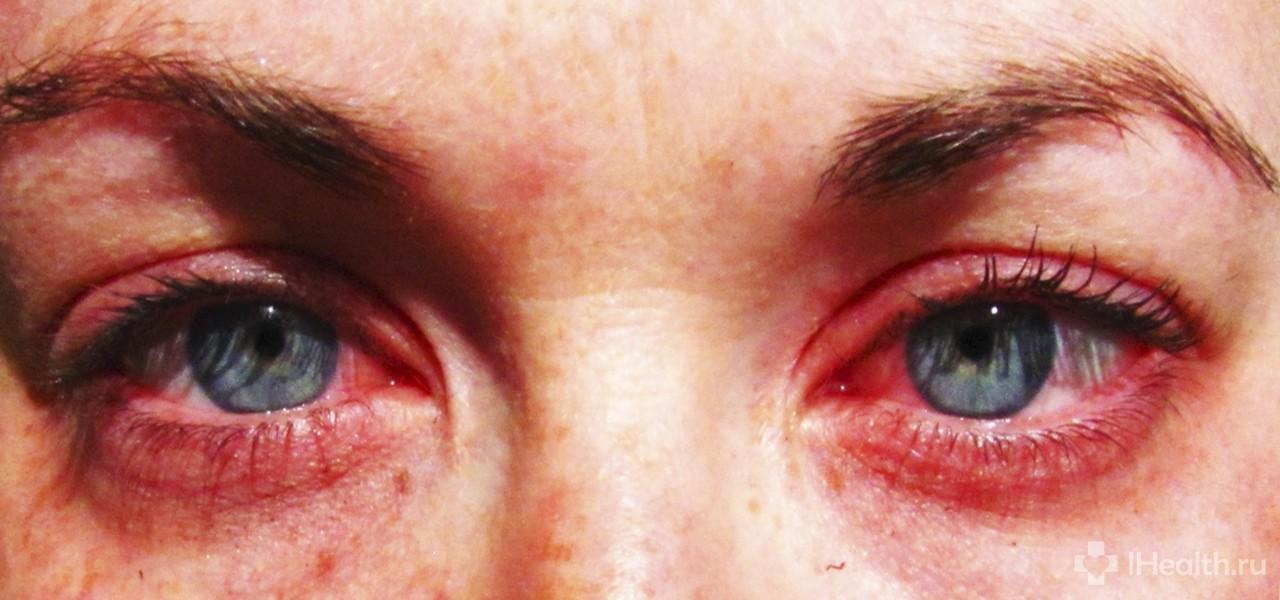 «Люксфен» - глазные капли