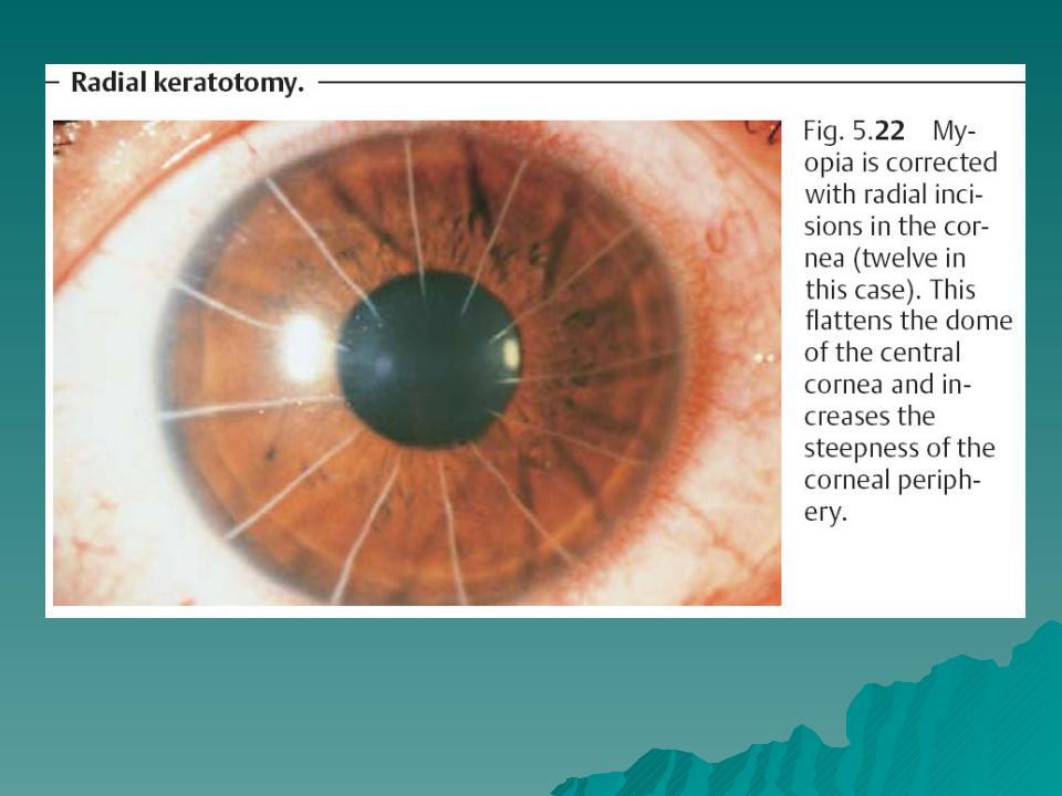 Радиальная кератотомия