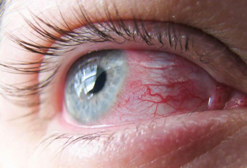Расфокусировка может быть следствием длительного напряжения глаз