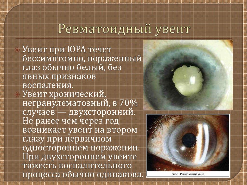 Ревматоидный увеит