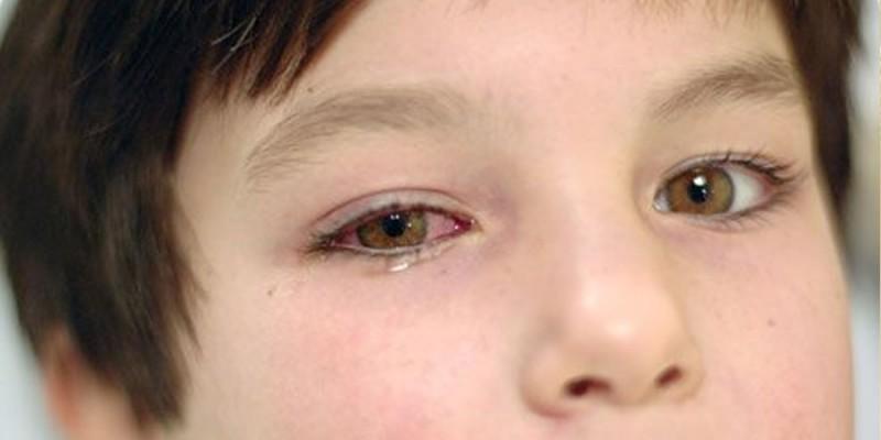 Ретинит — воспаление сетчатки