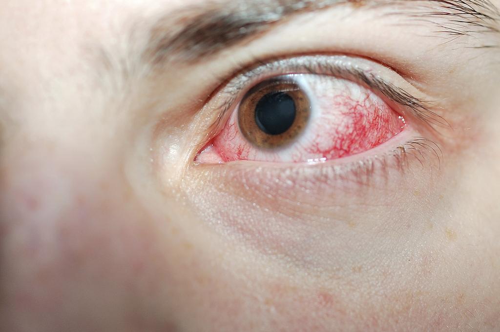 Сварочный ожог глаза как одна из причин развития астигматизма
