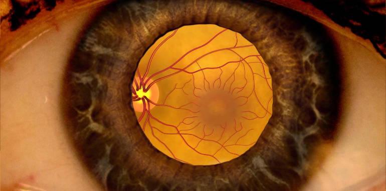 Сетчатка глаза - болезни и лечение
