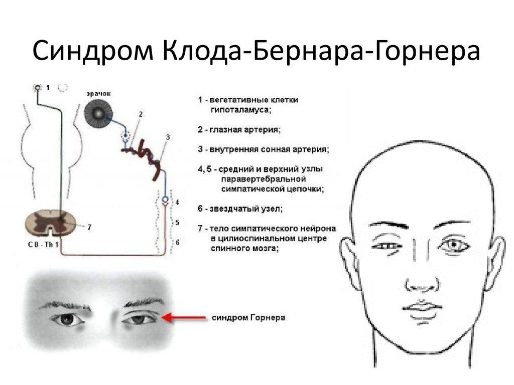 Синдром Клода-Бернара-Горнера