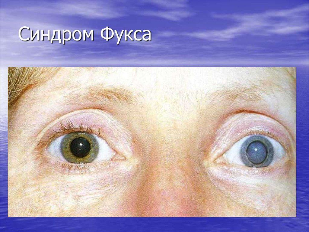 Синдром Фукса