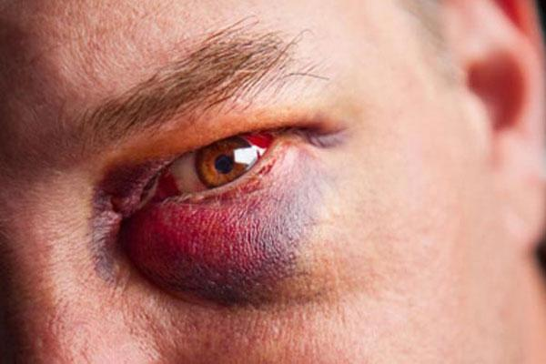 Синяк (гематома) под глазом