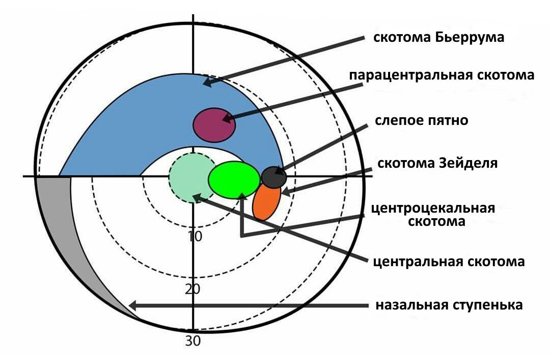 Скотома — слепой участок в поле зрения, не связанный с его периферическими границами