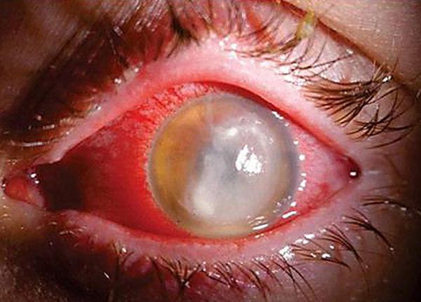Сложный случай ожога глаза после сварки
