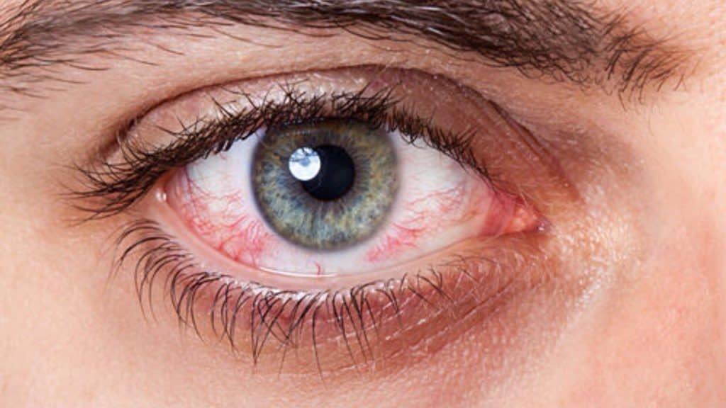 Средство поможет избавиться от аллергической реакции