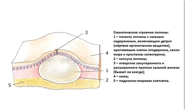 Схематическое строение липомы