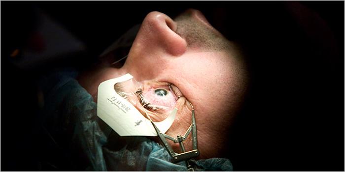 Такой метод, как лазерная коррекция зрения, появился сравнительно недавно, но на сегодняшний день признается одним из самых эффективных