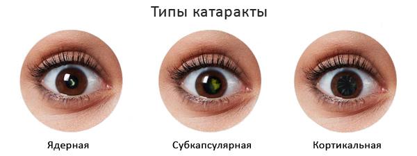 Типы катаракты