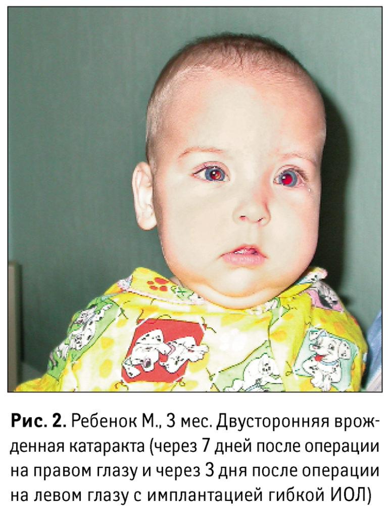 Трехмесячный ребенок после операций