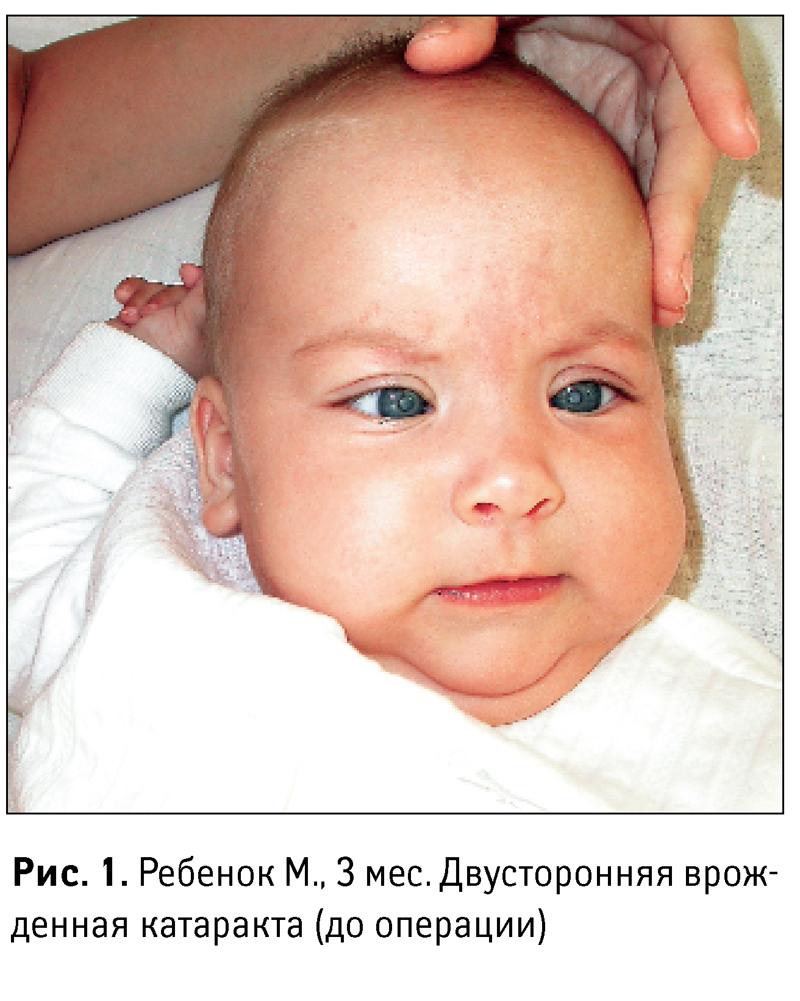 Трехмесячный ребенок с врожденной катарактой