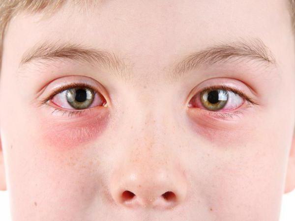 У детей блефароконъюнктивит бывает чаще, чем у взрослых