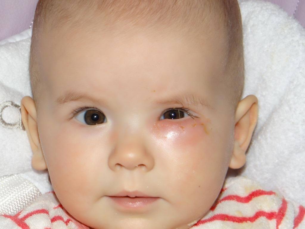 У ребенка дакриоцистит