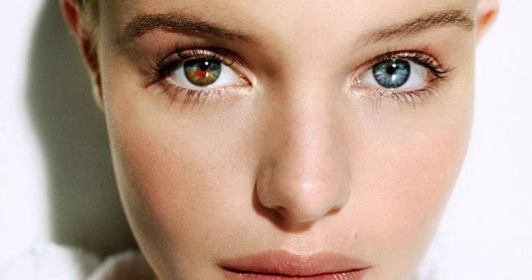 Центральная гетерохромия глаз