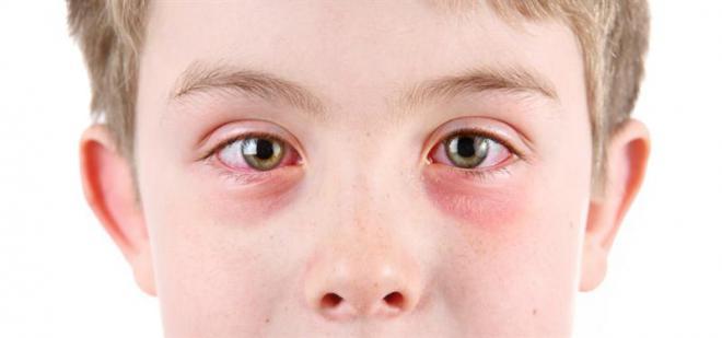 Что собой представляет аллергический конъюнктивит