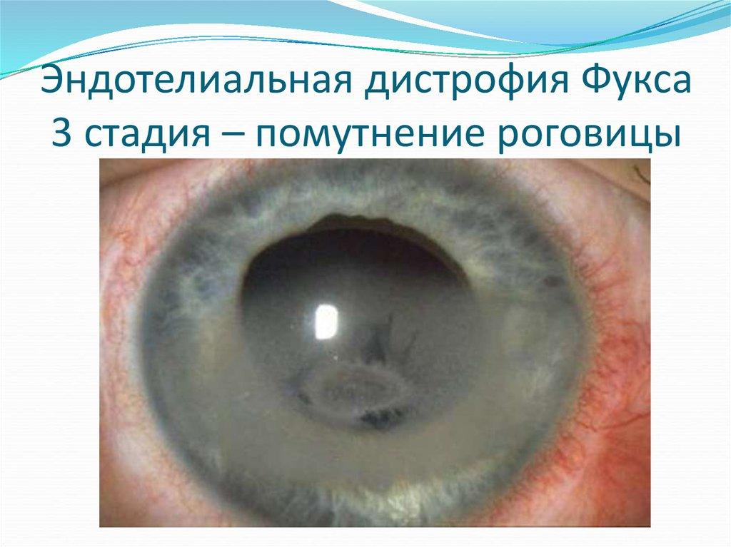 Эндотелиальная дистрофия Фукса 3 стадия – помутнение роговицы
