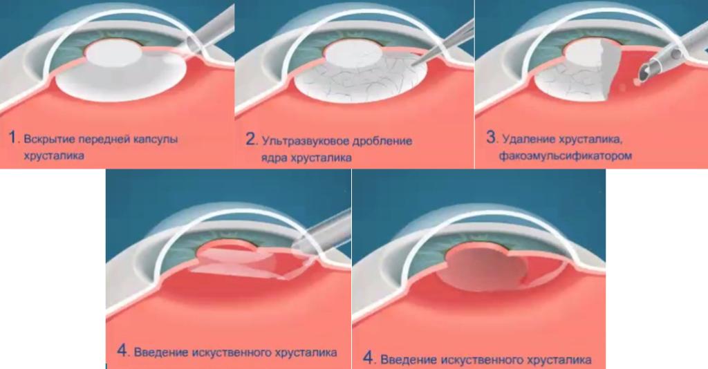 Этапы введения искусственного хрусталика