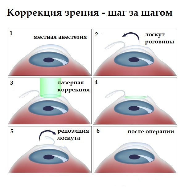 Этапы операции по коррекции зрения
