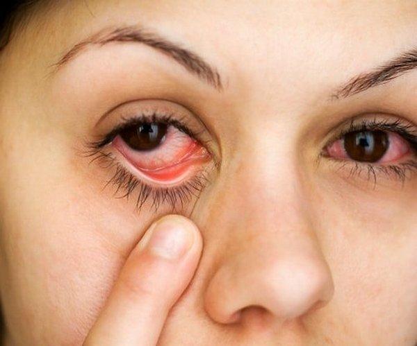 В редких случаях могут случиться осложнения в виде ухудшения остроты зрения, покраснения