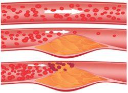 Атеросклероз сосудов в области шеи