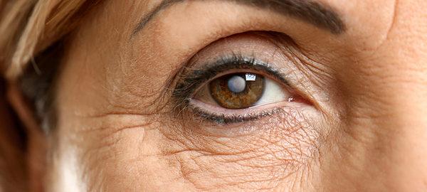 Симптомы катаракты проявляются не сразу – лишь спустя долгое время