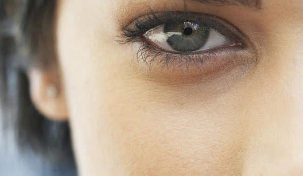 Синяки под глазами могут появиться из-за неполноценного сна, злоупотребления алкоголем или сигаретами