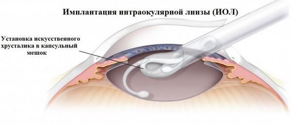 В процессе операции больному удаляют помутневший хрусталик и устанавливают искусственный