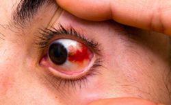 Кровоизлияние в дальние стенки глаза