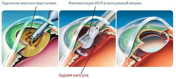 В процессе операции врач достает поврежденный хрусталик и помещает новый в капсульную сумку