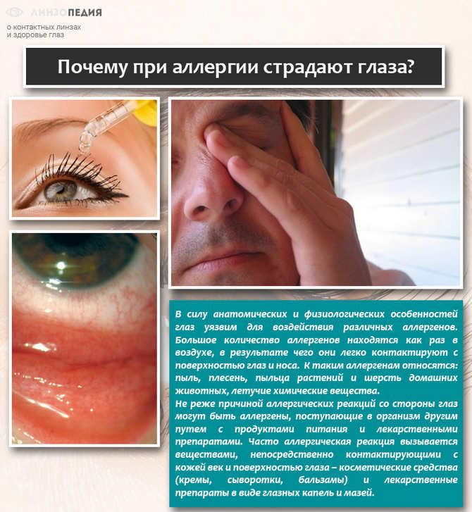 Почему при аллергии страдают глаза