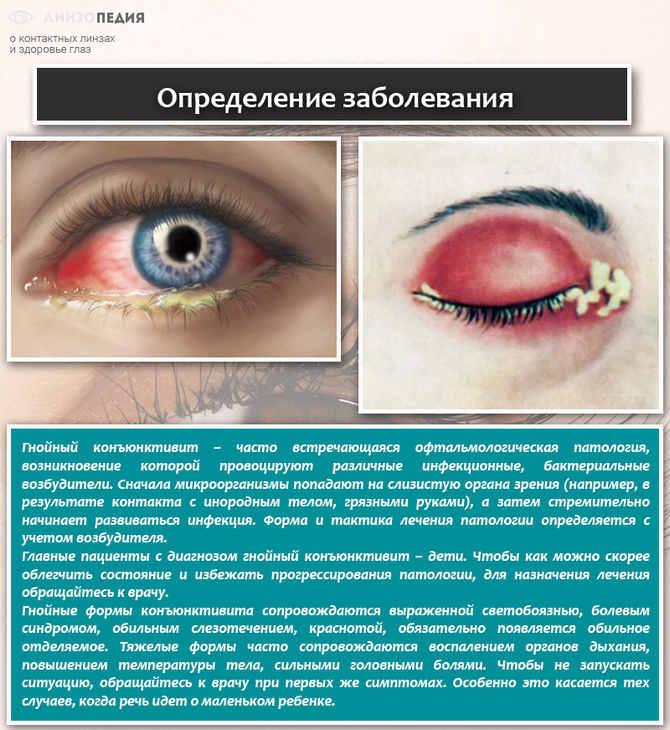 Определение заболевания конъюнктивит